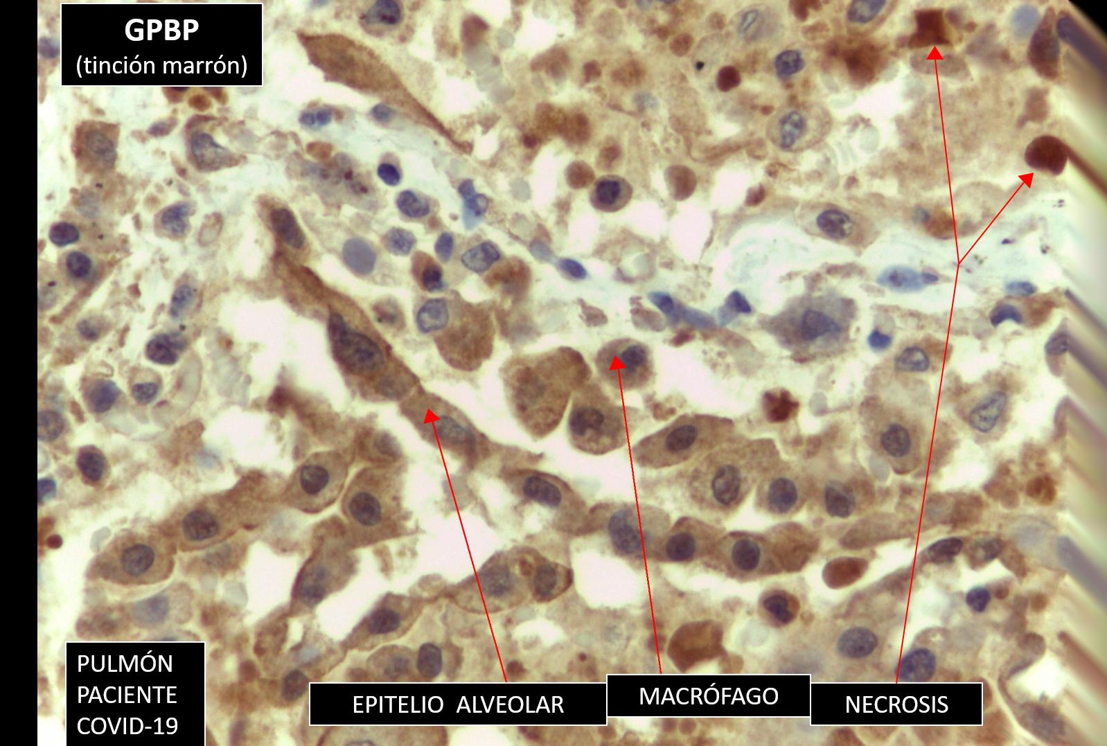 La UV investiga una prueba diagnóstica que evite distrés respiratorio en pacientes COVID